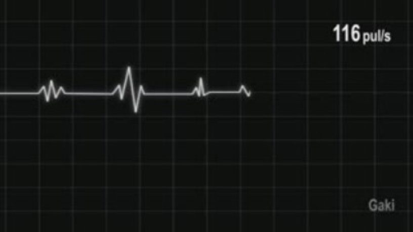 imagesRythme-cardiaque-10.jpg